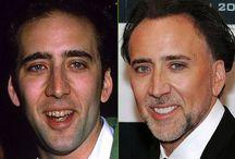 Gwiazdy przed i po / przed i po#zęby#gwiazdy#celebryci#estetyka#wizerunek#zdrowie# http://www.declinic.pl/zaufali-nam/