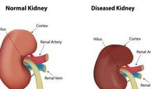 kidneys