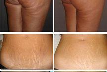 body renewal treatments