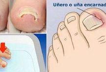 remedio para las uñas