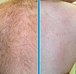 Laser Therapy / Hair Removal – Before & After / For those cosmetic dermatology patients looking for laser procedures to fix their hair issues, Inverness Dermatology offers laser hair removal. If you are a patient in the Hoover, Birmingham, or Chelsea, Alabama areas, check out Inverness Dermatology laser hair removal before and after pictures to see the talented work of Dr. Jacobson and Dr. Marks.