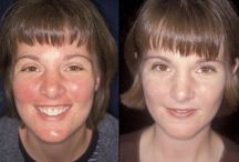 Working Rosacea Tricks / by Claire