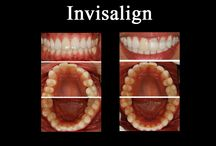 Invisalign Before & After Pictures