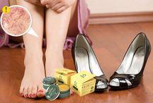 Get rid of varicose veins nоw! / http://c.cpl11.ru/eyep