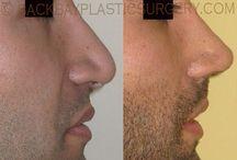 Boston Male Rhinoplasty / World renowned plastic surgeon Dr. Dan Del Vecchio specializes in male rhinoplasty.