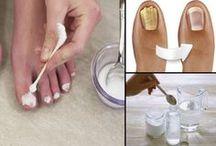 como curar hongos en las uñas del dedo del pie