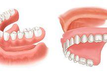 Dentures in Las Vegas / Get your Dentures at Las Vegas Smile Center. Call 702-433-6825 now.