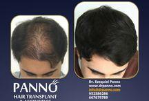 Injerto de pelo para aumento de densidad / Casos de implantes capilares realizados por el Dr. Panno. Resultados de injertos de pelo para aumento de densidad con fantásticos resultados.