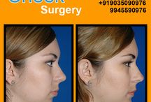 Cheek Surgery .Please visit us- www.cosmeticsurgerymangalore.com