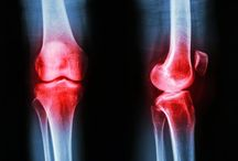 osteoarthritis / Osteoarthritis in the knee is a painful condition affecting nearly half of all Americans at some time - and two thirds of obese adults. Research suggesting that physical activity could help prevent it has been presented this week at the AVS 62nd International Symposium and Exhibition, in San Jose, CA.