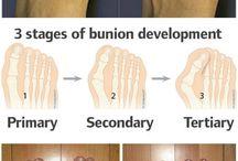 Bunion Excercises