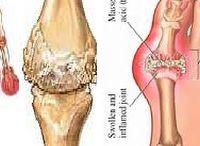 #Gout