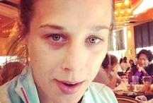 Joanna Jędrzejczyk z podbitym okiem-bokserka