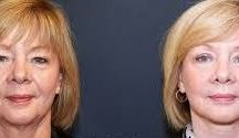 Biological Facelift Accomplished With Facial Yoga Gymnastics / The Facial Flexing Exercises Guide For Ladies And Gents To Obtain A Biological Facelift