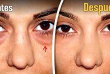 Tractaments per les bosses i contorn d'ulls