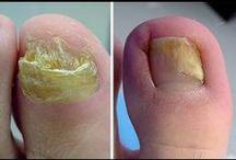 Cómo eliminar los hongos de las uñas