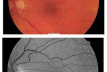 Epiretinal Membrane / Eye care of people living with epiretinal membrane.