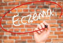 Natural Home Remedies for Eczema