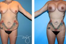 Breast and Buttock Augmentation / by Dr.J Plastic Surgery
