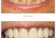 Veneers Before and After Gallery / Veneers Before and After Smile Gallery