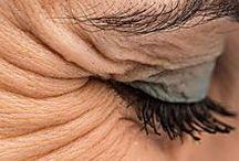 eliminar olheiras