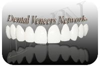 porcelain veneers / Dental veneers network is a great dental portal providing everything about porcelain veneers and including directory to find best verified veneers dentist, reviews, and prices.