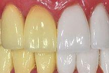 Tu remix for teeth