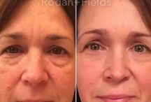 RODAN AND FIELDS / Contact me for the best skincare you will ever have. Maria.hunter006@gmail.com