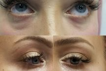 Tear Trough / Injectable fillers will be administered in the area under your eye. The result is a more active appearance and younger skin.  Fillers around the eyes are most likely to be visible. The skin is thinner in that area than others and so fillers will be more likely to show.  Our cosmetic experts have the skills to be able to deliver the best and most natural-looking results in applying dermal fillers in your eye area.
