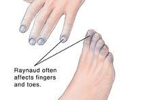 Health: Legs and Feet