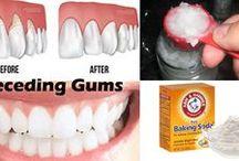 receading gums