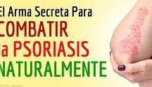 remedios psoriasis