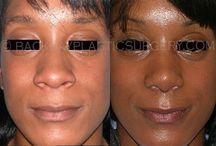 Non Causasian Rhinoplasty at Rhinoplastyboston.com / Dr Del Vecchio, World Renown Plastic Surgeon Specializes in the treatment of Non-Caucasian Rhinoplasty patients, including patients of African, African American, Central American. Far East Asian, and Asian type noses.  Our goal is to improve nasal aesthetics while preserving racial and ethnic features.
