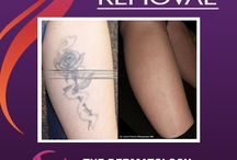 Laser Tattoo Removal / Laser Tattoo Removal is the gold standard treatment for removing unwanted tattoos with the least risk of damaging normal skin.