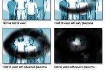 glaucoma vision examples Zelený zákal (glaukom)