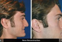 Rhinoplasty before and after / Rhinoplasty can change the shape of your nose and give you a more attractive and youthful look. Dr. Wafik Hanna is an expert in rhinoplasty and nose contouring.