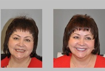 Smile Makeovers / Beautiful smle transformations www.DrLinger.com