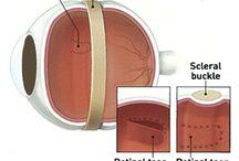 Patient information: Retinal detachment surgeries