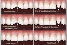 Cosmetic Bonding / A popular treatment option, it provides a successful attachment between the filling material and the tooth's original enamel and dentin. It looks like the original tooth and functions like it as well. It is less costly than porcelain veneers and crowns, and can be long-lasting with proper maintenance.