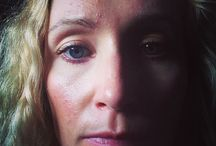 Natural Acne Treatment Reviews