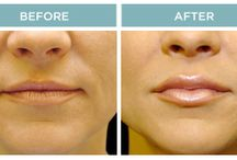 Lip Augmentation / View before and after photos of Dr. Schwartz's best work!