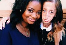 """Lovely Lizzie Velasquez / The inspirational woman and the star of """"A Brave Heart"""""""