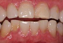 Cause dents jaunes