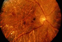 Science - Ophthalmology