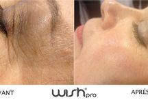 WISHpro France / WISHpro vous permet de profiter d'un soin de rajeunissement sans aiguille et sans injection.