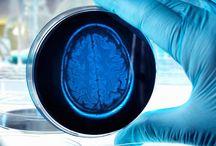 Health- Alzheimers/Dementia