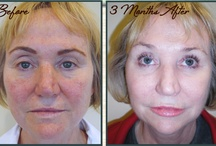 Non-Surgical Procedures / by St. Louis Cosmetic Surgery