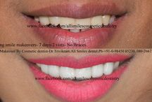 smile makeover cost in India / Smile makeovers by expert cosmetic dentist in Bangalore. Dr Trivikram (Dr Vikram),an expert cosmetic dentist in Bangalore.He comes with extensive international training from the United Kingdom.ALLSMILES - CENTRE FOR COSMETIC DENTISTRY AND DENTAL IMPLANTS.located only at - N0.64, SHANKAR MUTT MAIN ROAD BASAVANAGUDI.(no other branches). BANGALORE-560004.KARNATAKA. INDIA. E-MAIL- allsmilesdc@hotmail.com PH +91-0- 98450 85230.080-26673439.More at http://www.allsmilesdc.org/cosmetic-dentistry/