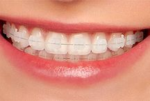 Orthodontics / Get all the details about orthodontics treatment at here.