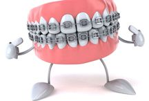 Dental Braces in Houston
